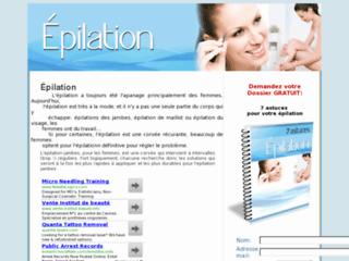 http://www.epilation-infos.com/