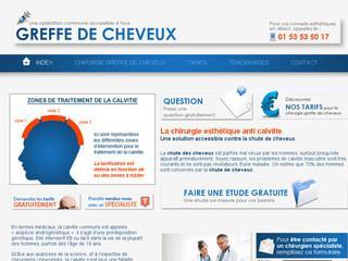 http://www.greffecheveuxpascher.fr/