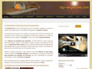 http://www.top-vergetures.com/